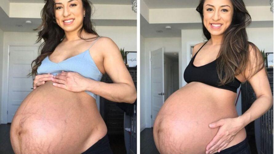 Nubbia compartilhou a mudança na barriga após o nascimendo dos filhos e fez um desabafo sobre a forma física na maternidade