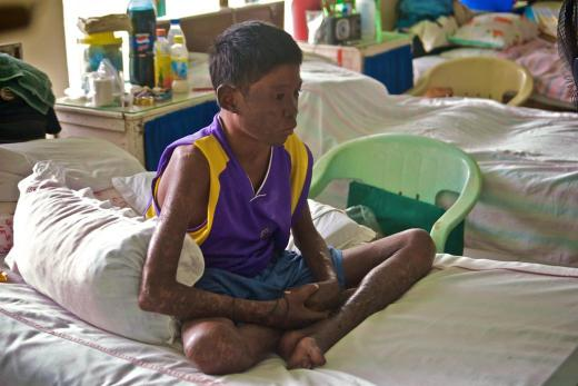 Since 2014, India had joined countries such as China, where leprosy can no more be treated by the conventional multi-drug therapy Credit: moyerphotos/Flicker