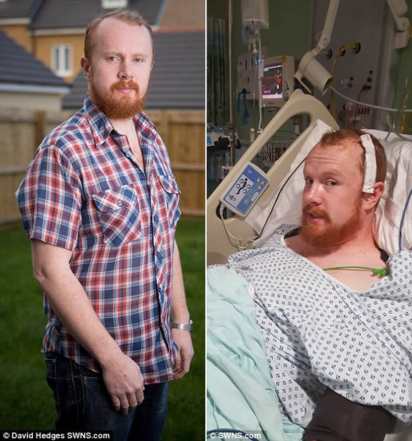 8 Weird Ways People Found Out They Had Cancer - Wow ...
