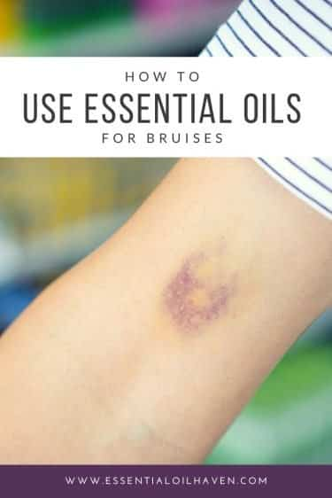 essential oils for bruised body parts