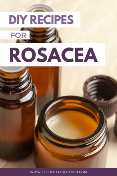 recipes for rosacea with essential oils