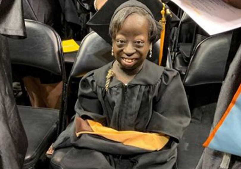 Une femme à qui les médecins avaient donné 3 jours à vivre à la naissance, reçoit son diplôme universitaire à 24 ans