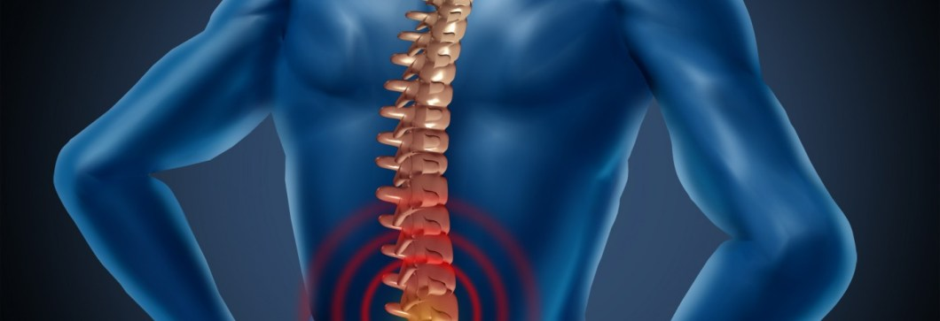 Image result for Fibromyalgia Pain May Be Linked to Spinal Cord Dysfunction, Researchers Say