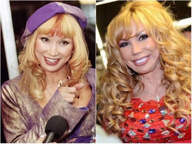 Маша Распутина звезды, знаменитости, лицо, пластическая операция, российские звезды, тогда и сейчас, хирург