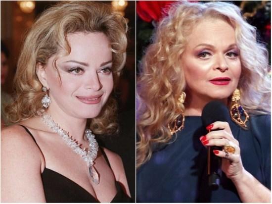 Лариса Долина звезды, знаменитости, лицо, пластическая операция, российские звезды, тогда и сейчас, хирург