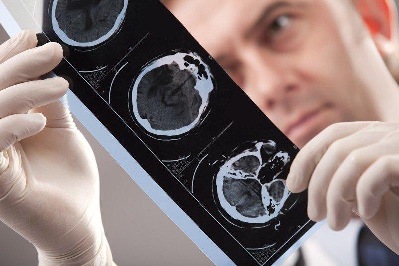 В Случае Инсульта, Вашу Жизнь Спасет ИГЛА! Смотрите, как оказать первую помощь при инсульте болезнь, инсульт, первая помощь., человек