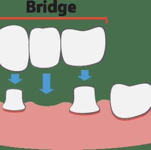 Dental Bridges Illustration