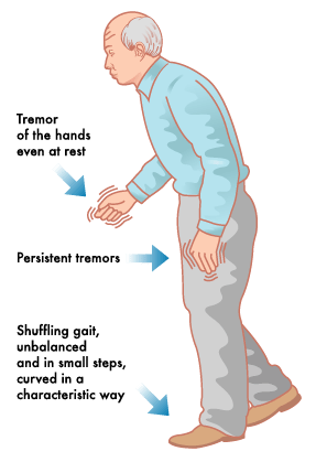 Parkinson's Disease Symptoms: Early Signs and Symptoms of ...