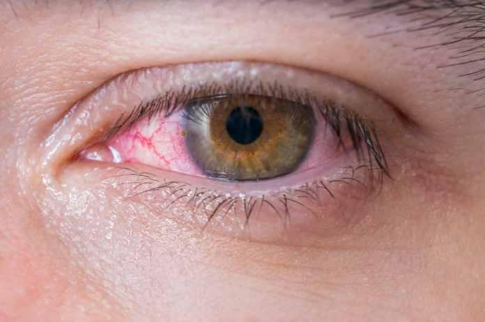 Hasil gambar untuk infeksi mata