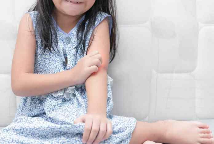 Image result for flu singapura pada si kecil