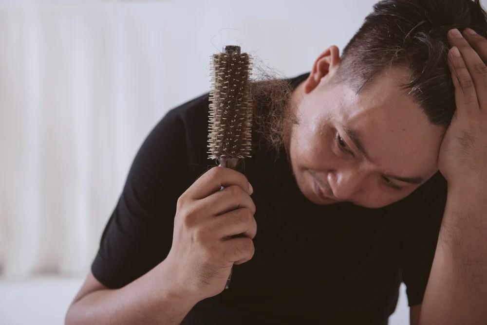Jenis Obat Penumbuh Rambut Dari Yang Kimiawi Hingga Alami