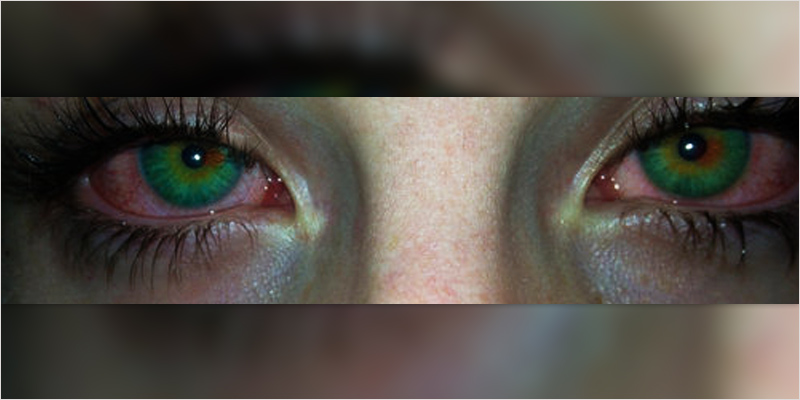 How To Get Rid Of Red Eyes From Weed Naturally