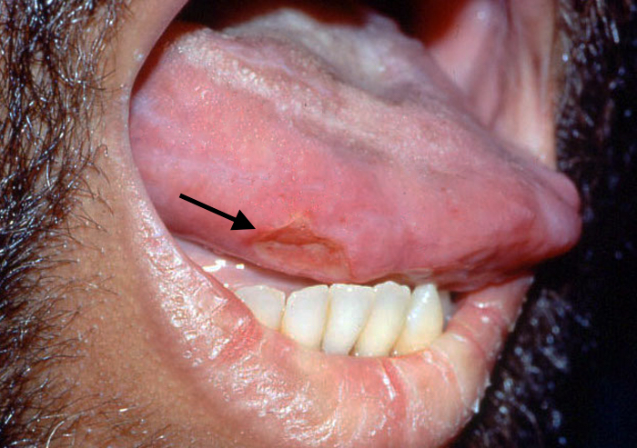 Tongue Ulcer Large