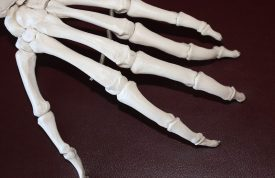 Get Stronger To Fight Arthritis