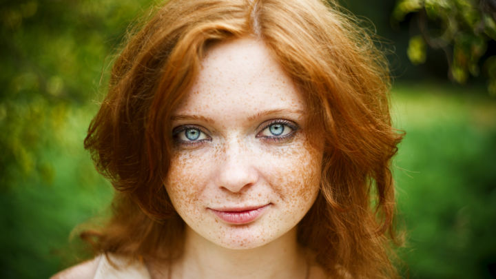 Secret Ginger Gene May Increase Risk Of Developing Skin