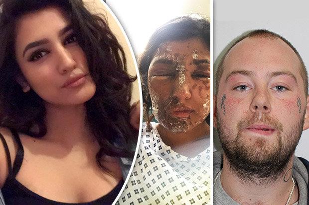 https://i1.wp.com/cdn.images.dailystar.co.uk/dynamic/1/photos/424000/620x/woman-burned-acid-attack-suspect-john-tomlin-626352.jpg?w=1060&ssl=1