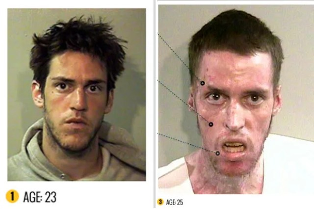 disturbing shocking beforeandafter drug use photos