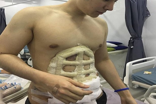 Image result for Instant Six-Pack Abs After Surgery