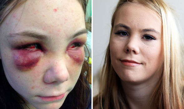 Teen Describes Torture Where She Was Treated Like A Dog