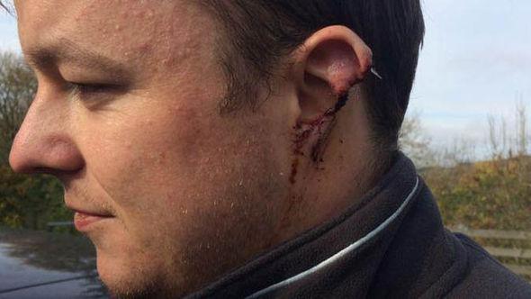 Man with ear bitten off