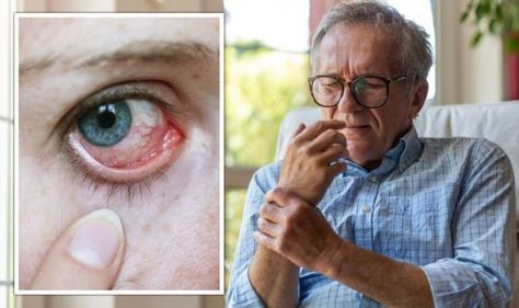 Arthritis: The telltale sign in the eyes that could signal onset of inflammation