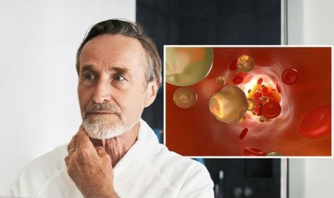 High cholesterol: The subtle 'change' on your face that can signal high cholesterol levels