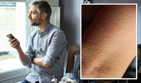 How often do you get goosebumps? What the tingling reaction says about your health