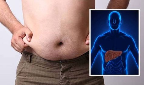 Fatty liver disease: The all over body change which may be a sign - list of symptoms