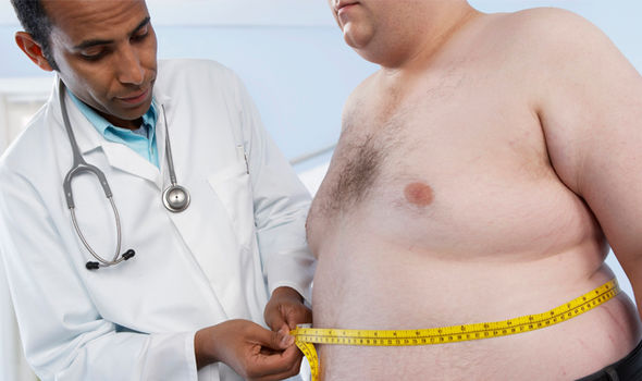 Obesity: Obese people are more likely to experience pain of weight on joints