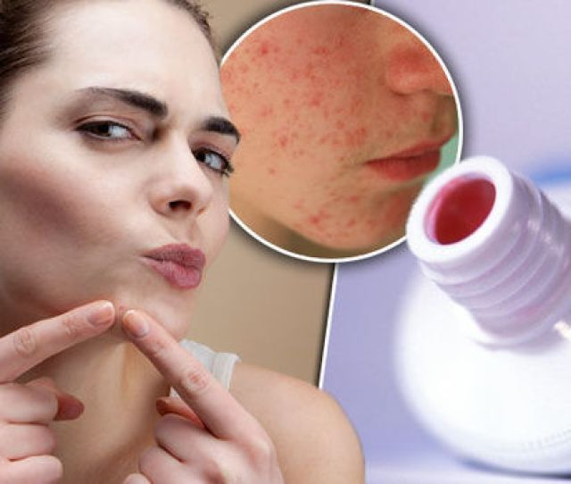 Spots How To Get Rid Of Acne Fast Skin Treatment