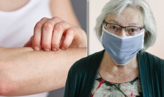 Covid new strain symptoms: Four 'skin changes' that may be caused by coronavirus infection