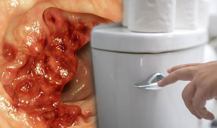 Bowel cancer: Looser stools which are closer together and tinged with blood could be signs