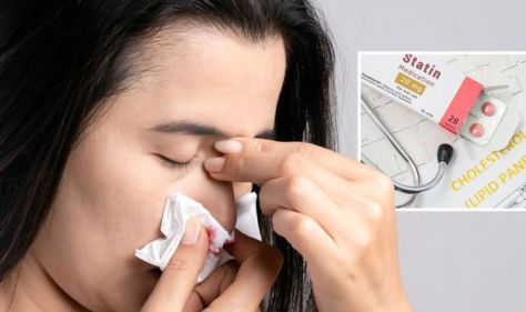 Statins side effects: The eight most common side effects, which includes nosebleeds