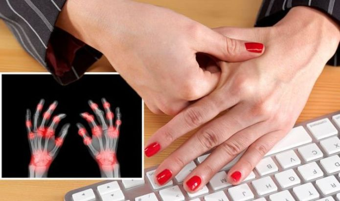 Rheumatoid arthritis symptoms: The four warning signs in your fingers - 'numb, tingle'