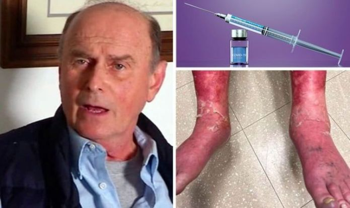 Covid vaccine side effects: Man says 'stinging' skin started to peel off after the jab