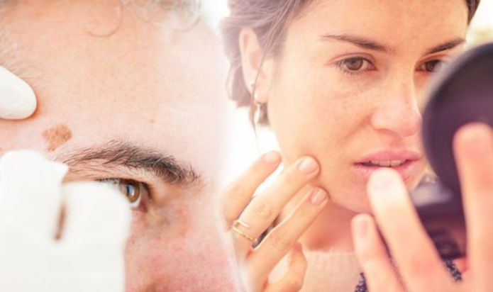 Skin cancer: The checklist to use to work out if your mole or freckle may be cancerous