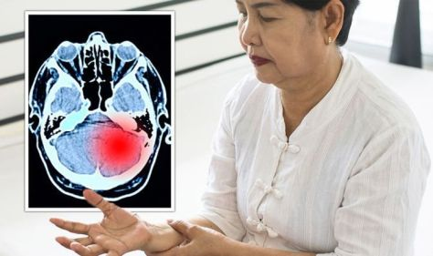 Dementia symptoms: Bodily signs of early stage Lewy body dementia