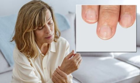 White spots on nails - the underlying health conditions they could be signalling