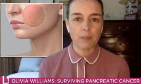 Pancreatic cancer symptoms: Survivor Olivia Williams shares 'bizarre' symptom to spot