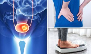 Cancer symptoms: Bladder tumour signs include back pain and weight loss | Expresscouk