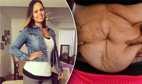 Beautiful brunette left with 'body of 90-year old' after ...