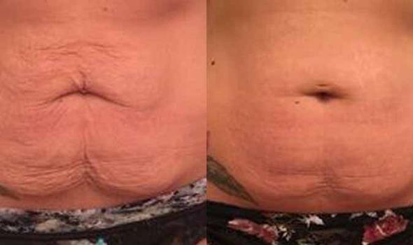Tummy Tuck Results Years Later
