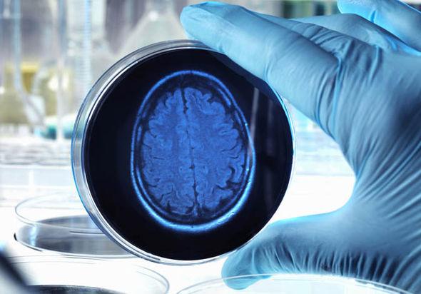 memories made science secret brain disease personal experiences