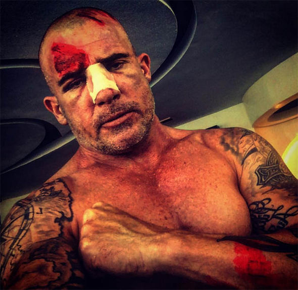 Dominic Purcell with broken nose