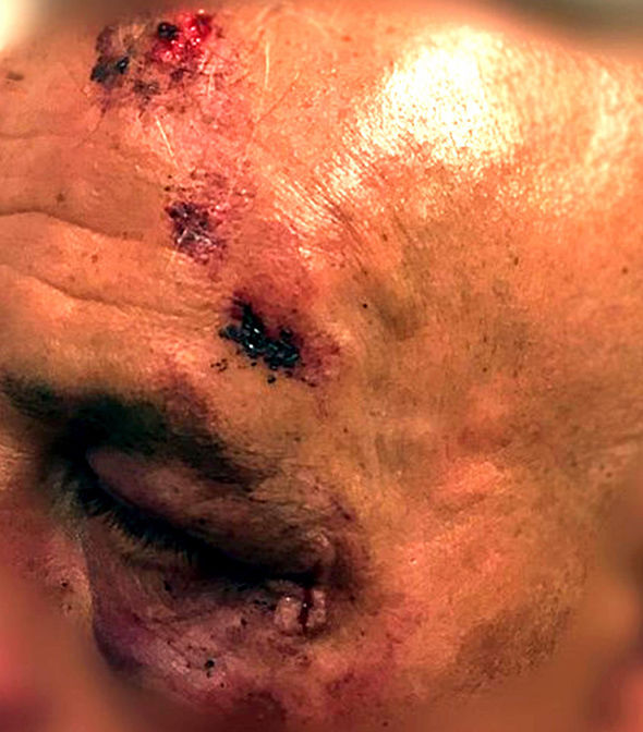 One of the men displays some of the injuries suffered