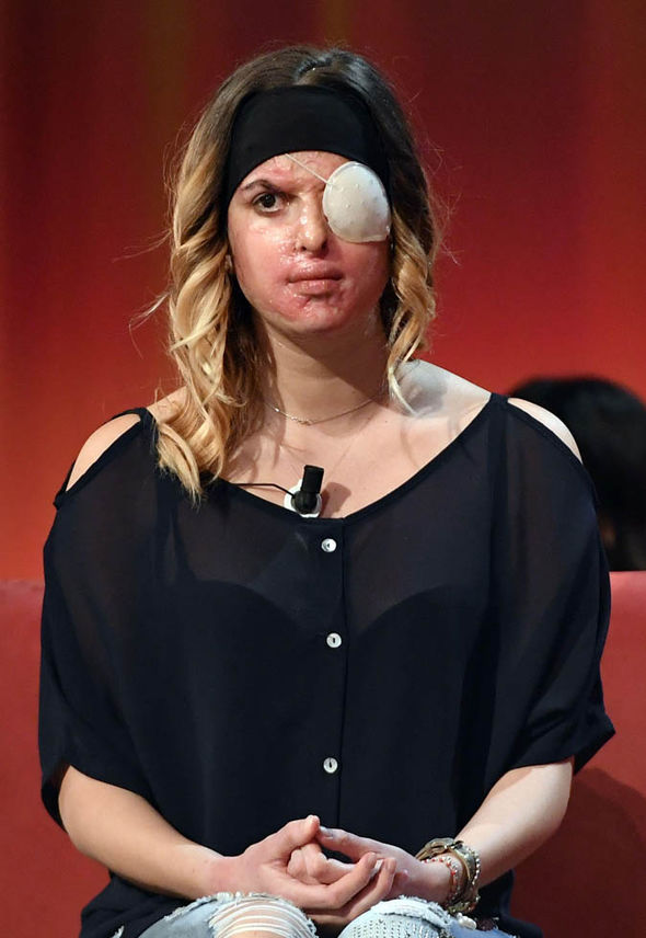 Model shows her scarred skin