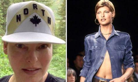 'I'm disfigured!' Model Linda Evangelista claims she's been left 'deformed'