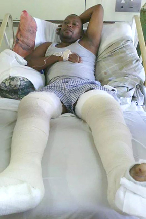 Videographer Orville &Quot;Ruff&Quot; Samuel Suffered Broken Legs. (Photo: Facebook)