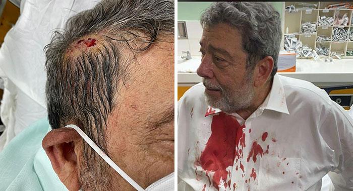 Injured Gonsalves