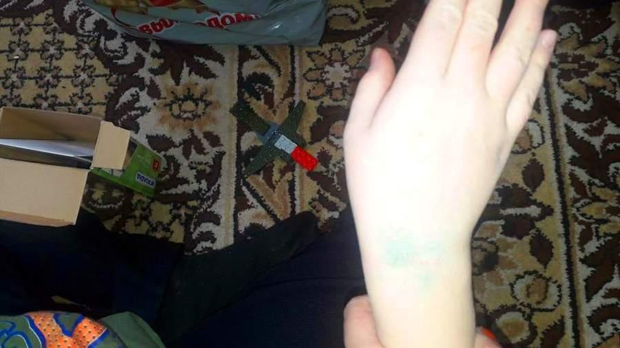 Синяки на руке мальчика, которого избивают дети в Барнаульском центре помощи детям, оставшимся без попечения родителей, № 4